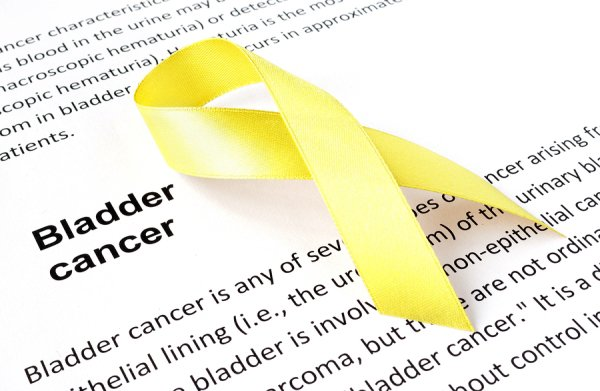 bladder cancer - urology associates pc nashville