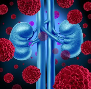 Kidney Cancer Risk Factors in Nashville